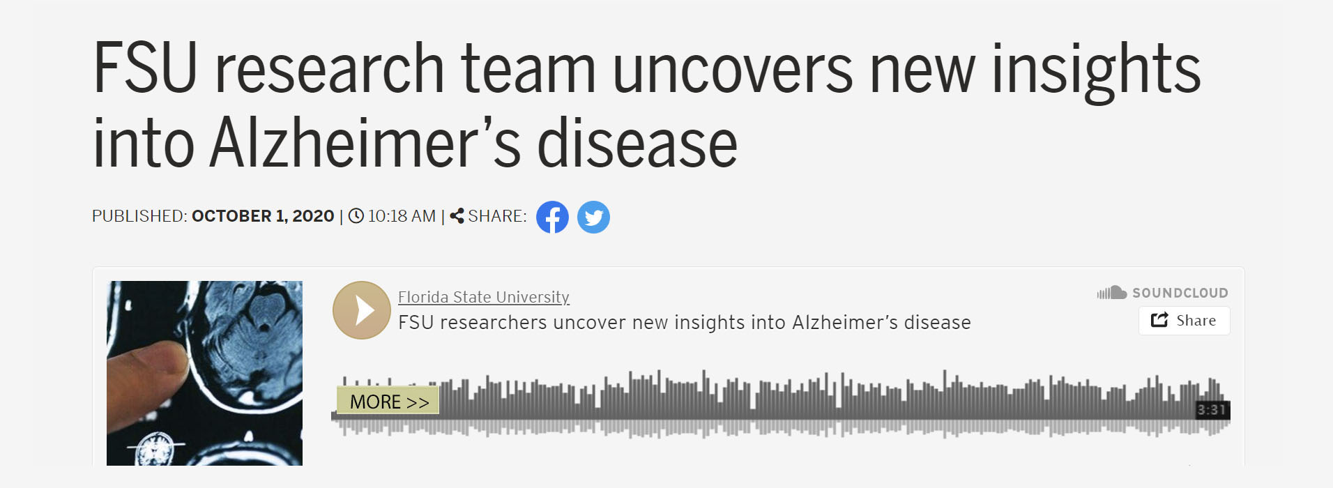 FSU research team uncovers new insights into Alzheimer's disease