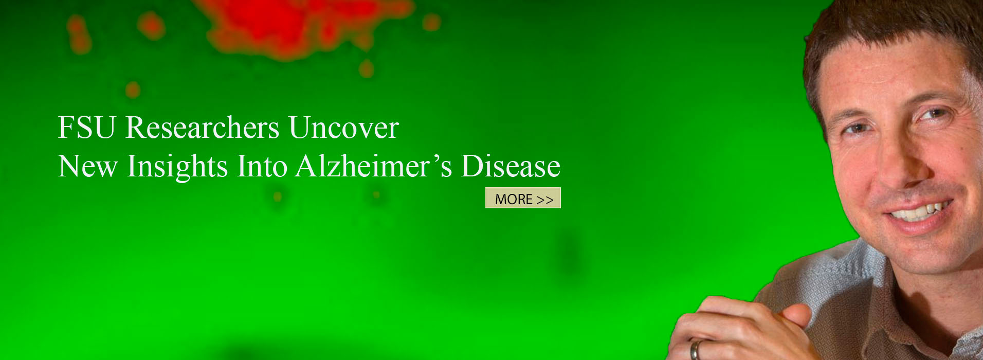 FSU Researchers Uncover New Insights Into Alzheimer's Disease